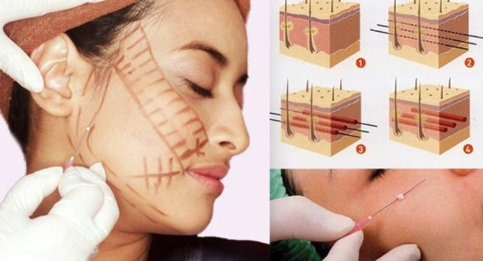 Phương pháp căng da, năng cơ mặt bằng chỉ